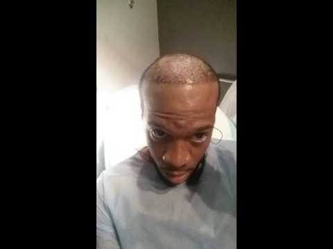 5mins out of surgery African American male 2nd hairtransplant