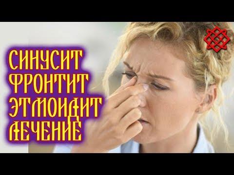 СИНУСИТ ФРОНТИТ ЭТМОИДИТ. Симптомы и Лечение Народными Средствами