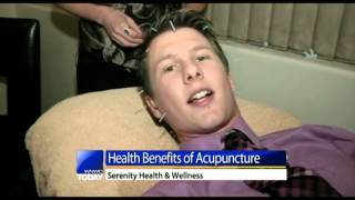 Acupuncture for chronic pain relief