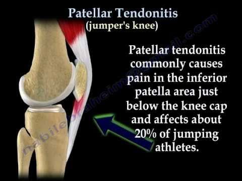 Patellar Tendonitis Jumper