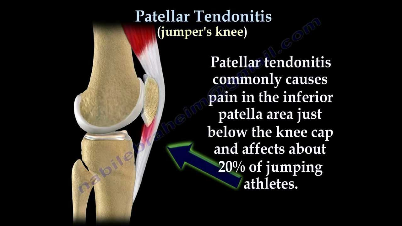 Patellar Tendonitis Jumpers Knee Everything You Need To Know Dr