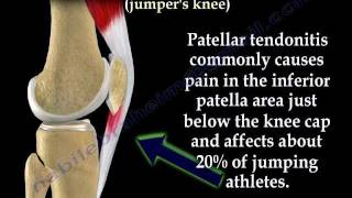 Knee (Anatomical Structure)