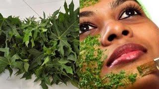 Eliminate Your Acne Using Papaya Leaf - Simple Home Remedies for Acne Using Papaya Leaf