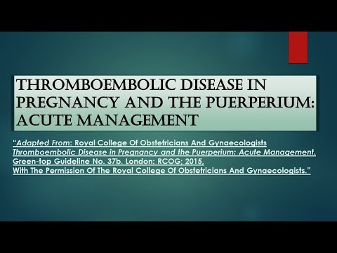 RCOG Guideline Thromboembolic Disease in Pregnancy and the Puerperium: Acute Management No.37b