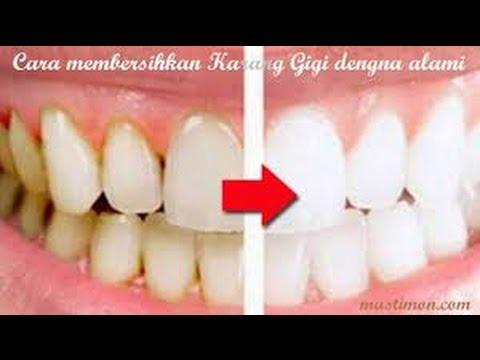 Luar Biasa 12 Cara Menghilangkan Membersihkan Karang Gigi Yang