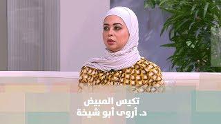 تكيس المبيض - طب وصحة -  د. أروى أبو شيخة