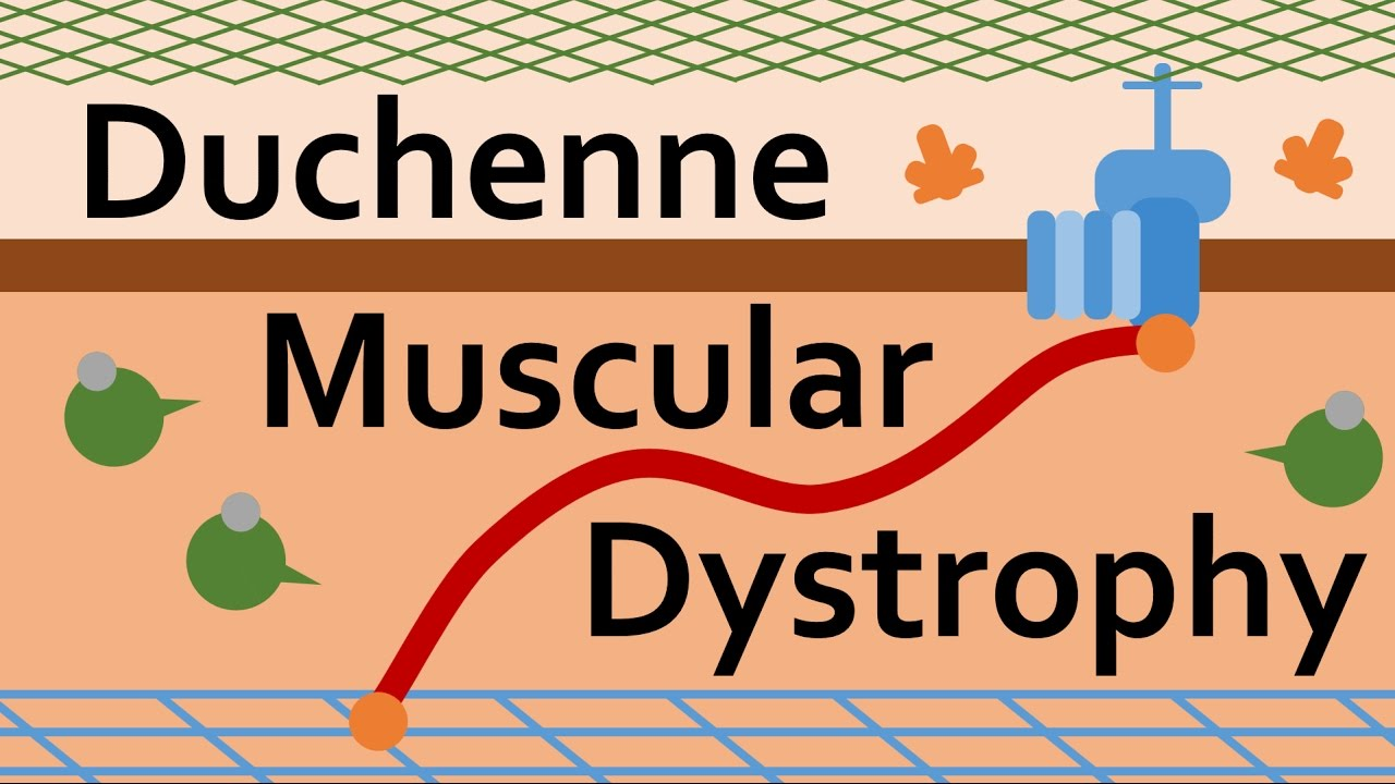 Download Duchenne Muscular Dystrophy and Dystrophin