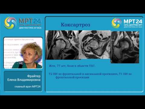 «Дегенеративно-дистрофические заболевания костно-суставной системы».