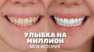 Виниры в Турции в 2 раза дешевле Реальный отзыв о Myra Dental Clinic Цены стоматологии Анталии