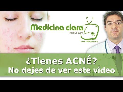Curar el Acné | ¿Se puede curar el acné? Pautas de tratamiento