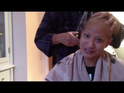 Losing Hair | Breast Cancer patient loses hair from chemotherapy