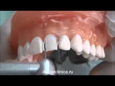 Коронки на зубы: как ставят и какие? Какие коронки лучше