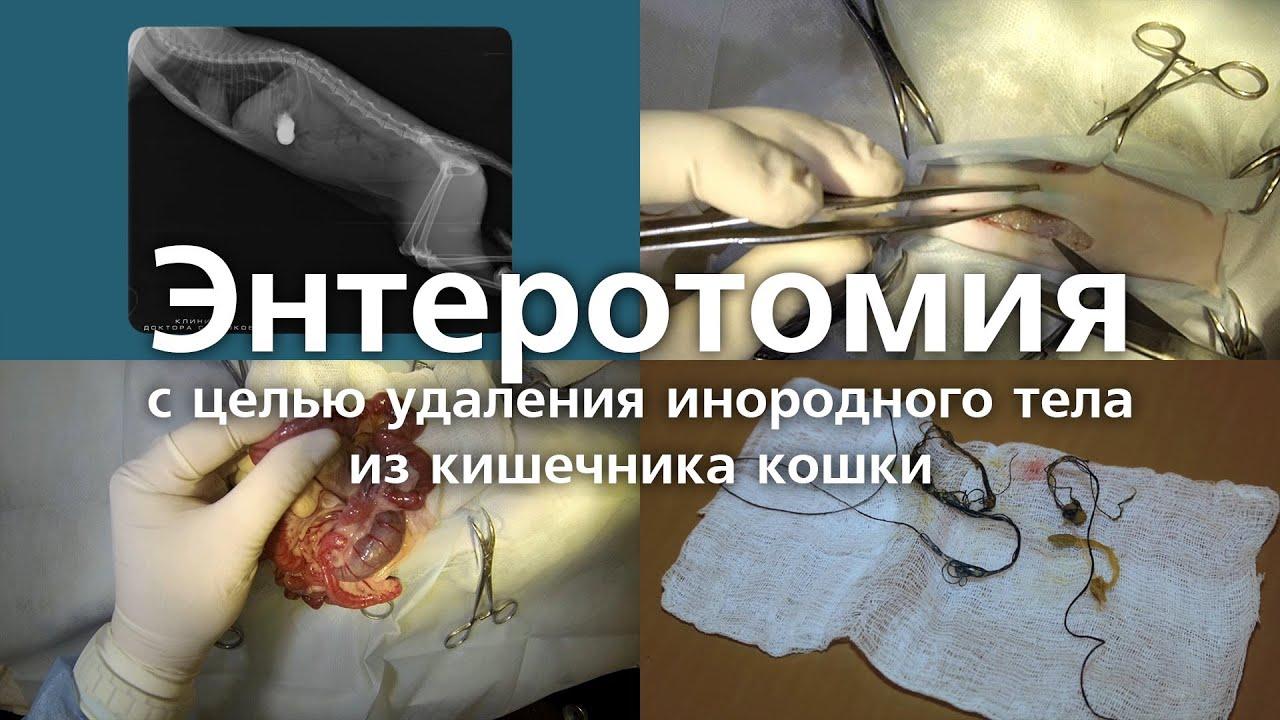 Энтеропексия