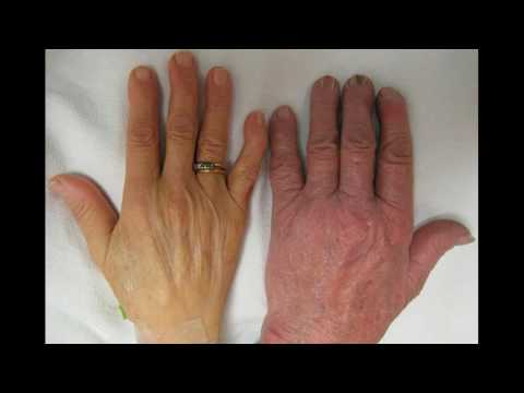 Come riconoscere i sintomi di carenza di vitamina D