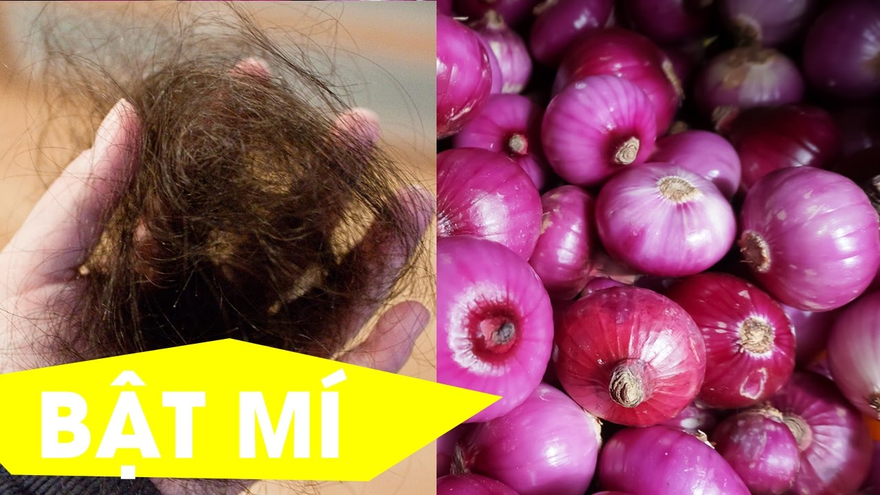 {Làm Đẹp} Cách ngăn rụng tóc và giúp tóc mọc dày bằng CỦ HÀNH chỉ sau 01 tháng - #Tuyennguyen