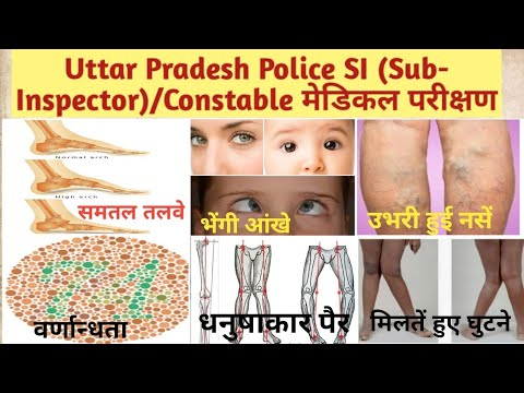UP SI Medical Test- Details | UP Police Constable Medical Test | Medical  Test में क्या-क्या होता है?