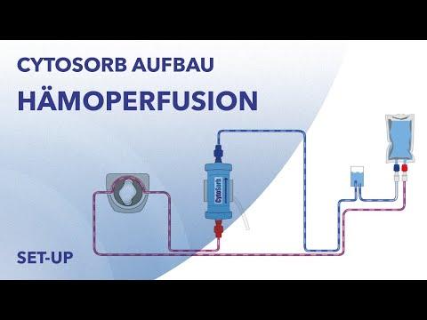 Hämoperfusion Aufbau für Stand-Alone Anwendung von CytoSorb