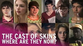 Skins   Where Are They Now?