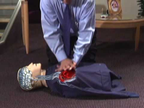 Continuous Chest Compression CPR—University of Arizona Sarver Heart Center