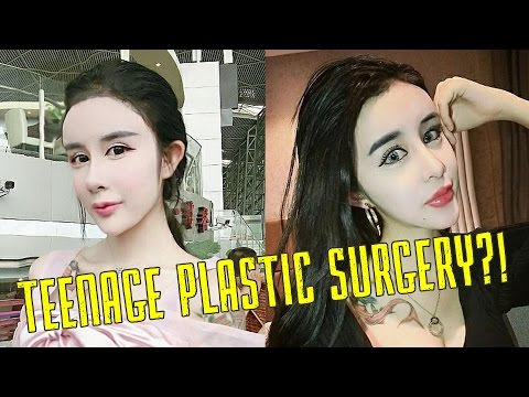 15-Year-Old Gets Extreme Plastic Surgery: Cosmetic Surgery in Asia