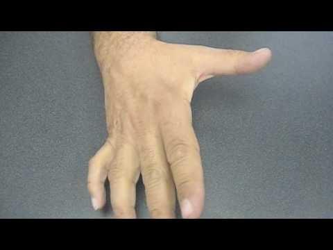 Ulnar nerve palsy - YouTube