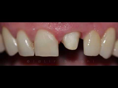 Zirconia dental crown - Your Dentist in Tirana Albania