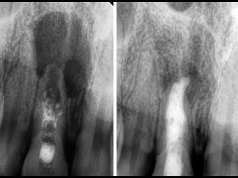 «Киста» зуба. Что делать после лечения? Лечение «кисты» зуба (периодонтита) без удаления