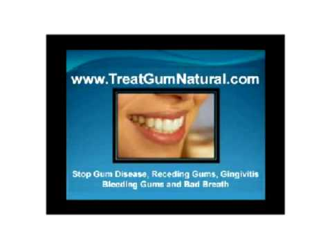 Stop Gingivitis, Avoid Gum Surgery Stop Gum Periodontal Disease Protect your Heart & Body