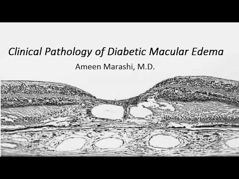 Clinical pathology of Diabetic Macular Edema