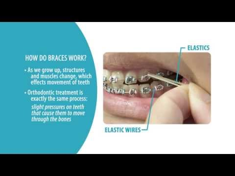 The Definitive Guide to How Braces Work