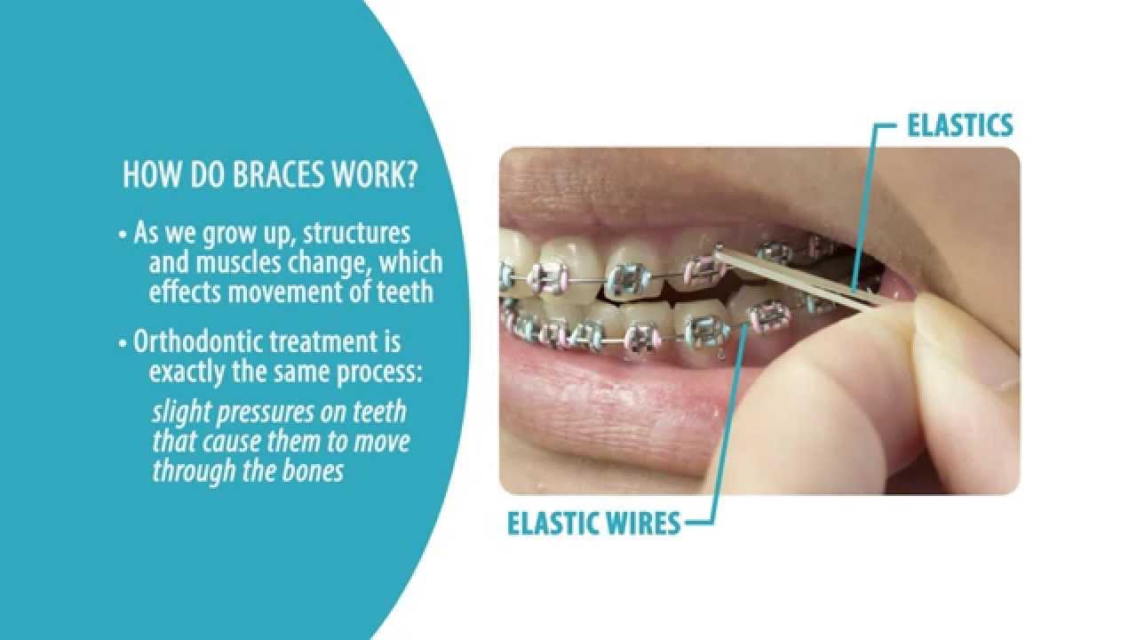 How do braces work? - YouTube