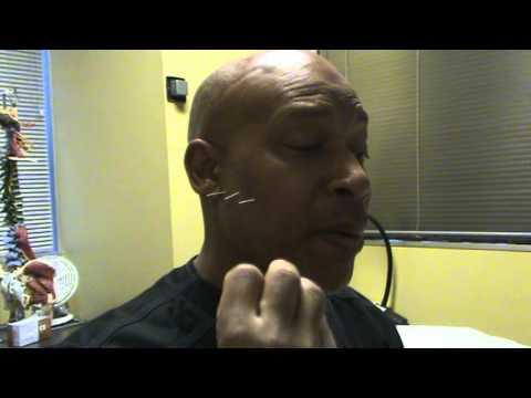 Diy acupuncture youtube diy acupuncture solutioingenieria Gallery