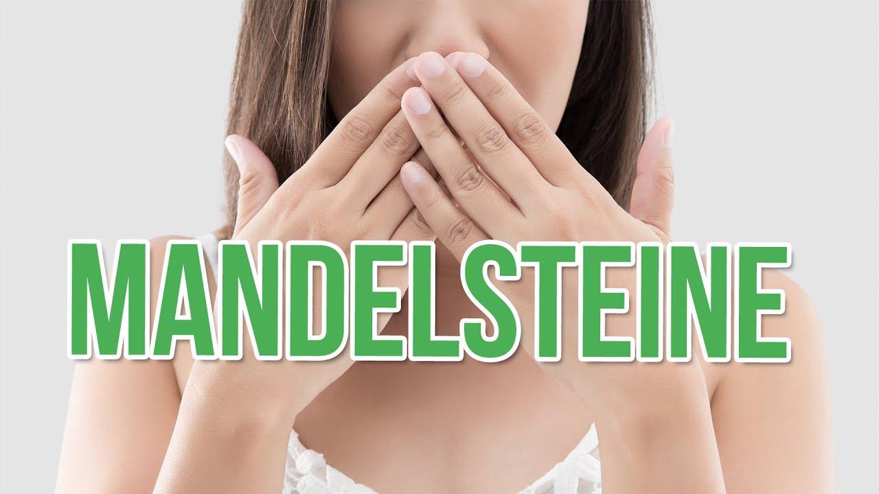 Mandeln stinkende Mandelsteine