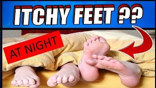 Why Do I Get Itchy Feet/Skin at Night | How To Get Rid of ITCHY FEET ??