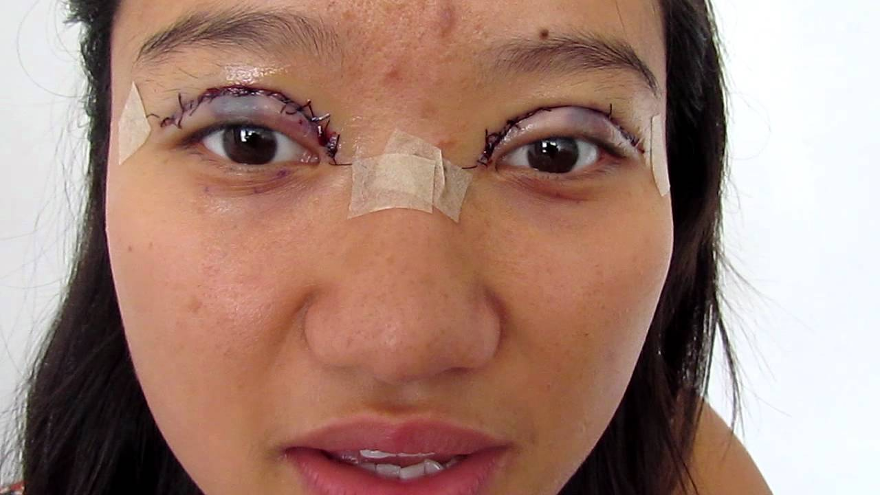 My Double Eyelid Surgery & Post Recovery Day 1