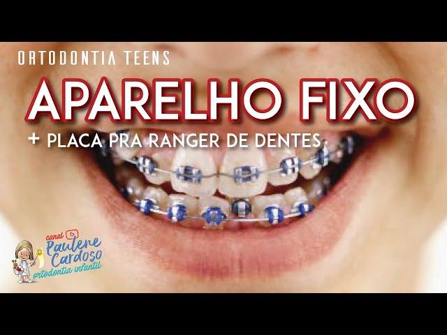 Dra Paulene Cardoso - Placa pra ranger de dentes + Aparelho fixo