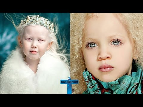 Top 10 Kids Who Are Unique & Amazing In The World - Kids With Unbelievable Features!