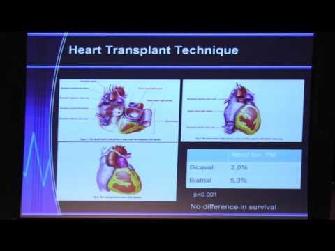 Organ Transplantation in ACHD - Dr. Reshma Biniwale   2017 UCLA ACHD Symposium