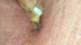 Pus plug burst infected belly button