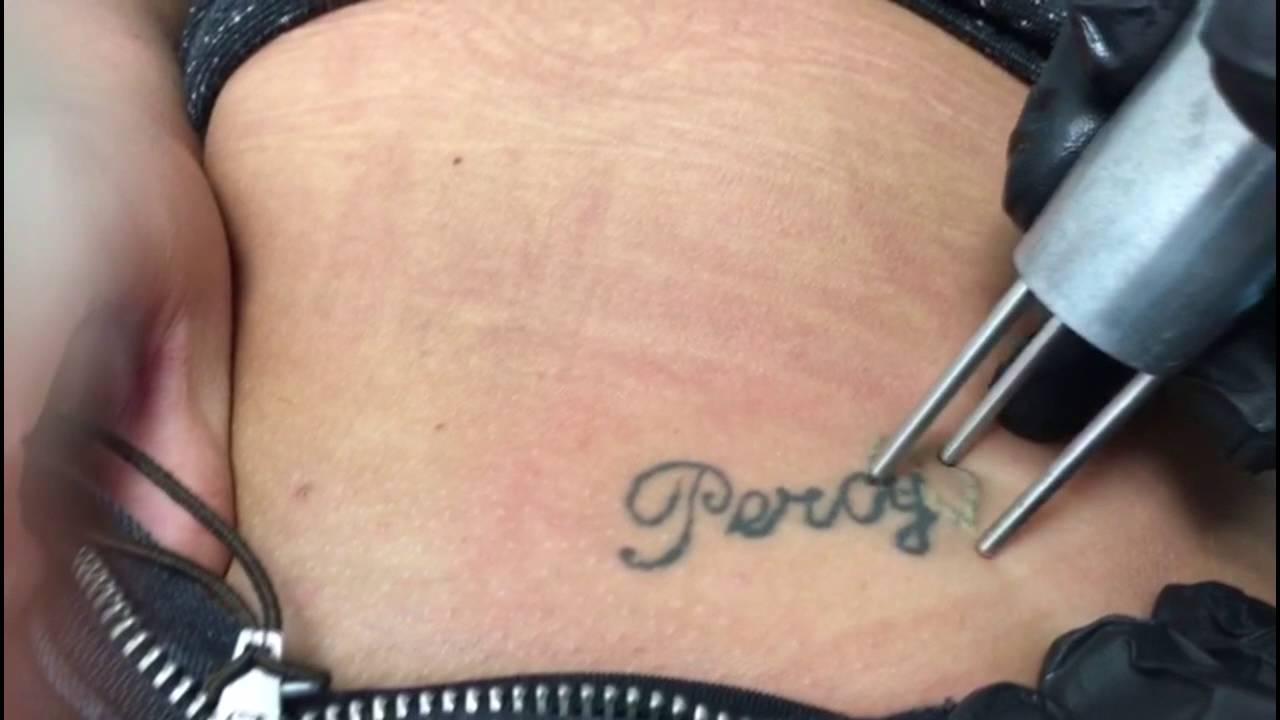 Laat Uw Tattoo Verwijderen Door Tattoo No More Rotterdam