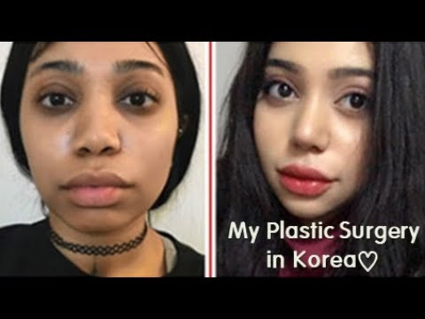 Best Korean Plastic Surgery Clinic Rhinoplasty Contouring Review