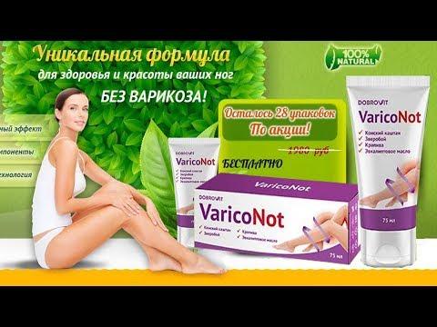 VaricoNot средство от варикоза Бесплатно Варикоз препарат Как лечить варикоз в домашних условиях