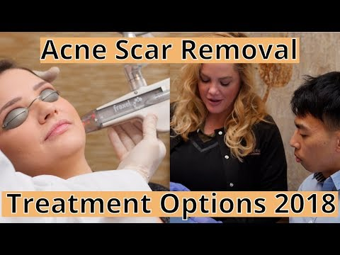 acne-scar-removal-options-[2018]:-what's-new-&-what-works-with-dr.-ellern