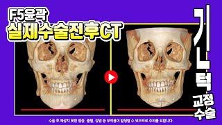 [긴턱 교정 수술] 하관이 긴 얼굴! 윤곽2종(사각턱축…