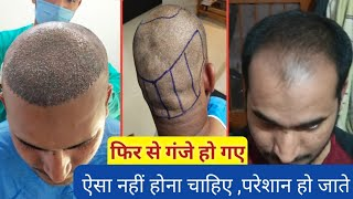 Again Bald After Hair Transplant ? | 0 to 45 Days of hair transplants