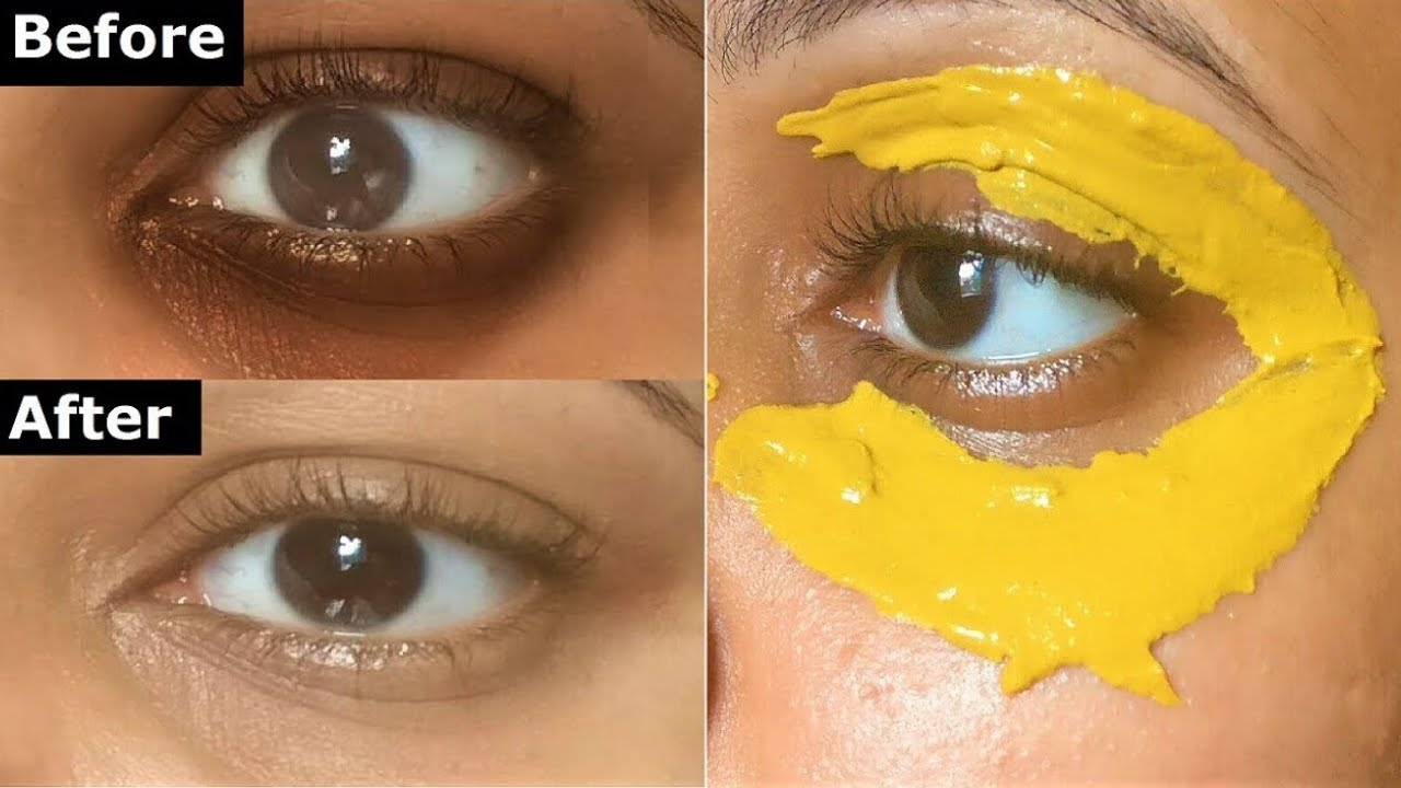 Turmeric Eye Mask to Get Rid Of Dark Circles Naturally ...