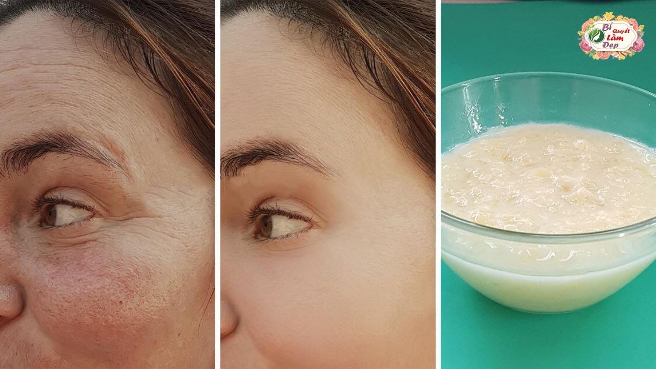 Xóa Sạch Nếp Nhăn Vùng Mắt Trông Bạn Trẻ Hơn 10 Tuổi Nhờ Biết Dùng Khoai Tây Theo Cách Này