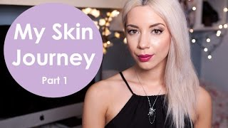 My Skin Journey | Part 1 Intro & Facial