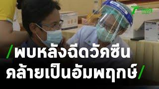 พบอาการหลังฉีดวัคซีน คล้ายอัมพฤกษ์ | 21-04-64 | ข่าวเที่ยงไทยรัฐ