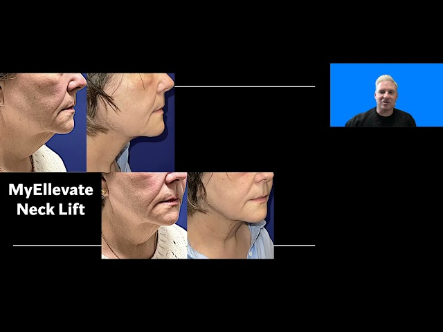 MyEllevate suture Necklift with Dr. John Burroughs at Springs Aesthetics, in Colorado Springs